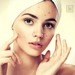 Skin and Face Care - acne, fairness, wrinkles icon